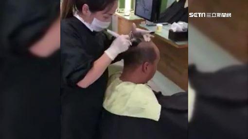 """治禿髮新招用""""刺""""的 針扎顏料增髮量感"""