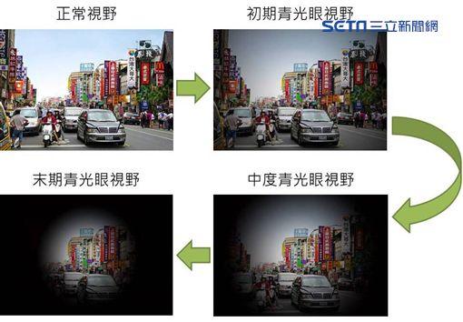 醫師徐維成表示,眼壓過高是造成青光眼的主要原因。(圖/台北慈濟醫院提供) ID-825979