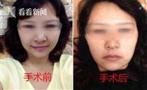 大陸,整型,婦人 http://society.huanqiu.com/article/2017-04/10478695.html