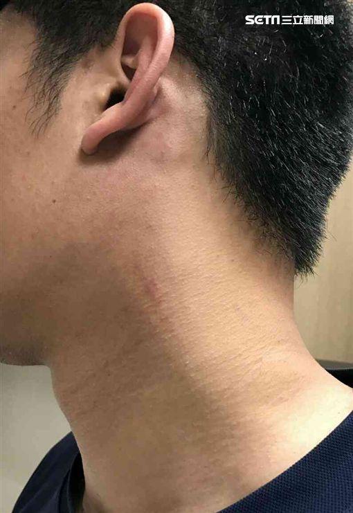 林姓消防員頸部留下抓痕。(圖/翻攝畫面)