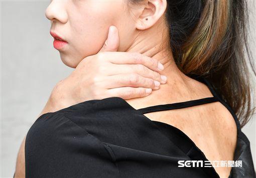 莊詠婷提醒,夏天忽略保濕,皮膚不但會更乾燥,甚至因搔癢的紅斑產生。(圖非新圍當事人/公關照)