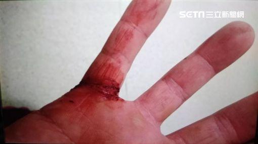 吳姓警員右小指遭嫌犯砍傷流血。(圖/翻攝畫面)