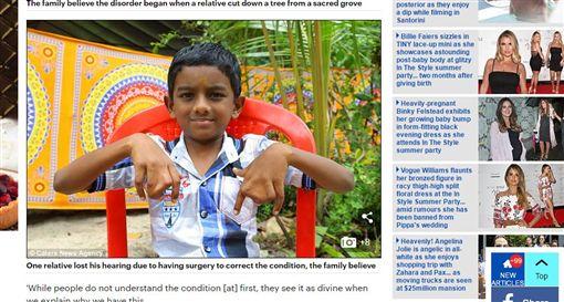 印度蹼指(圖/翻攝自Daily Mail)http://www.dailymail.co.uk/health/article-4510396/Indian-family-refuse-surgery-webbed-hands.html