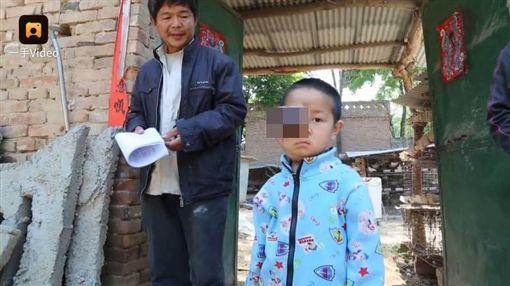 大陸山東男童右眼長出巨大惡性腫瘤/梨視頻