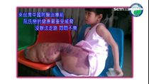 多次來台動刀能走了!越南象腿女孩謝台灣