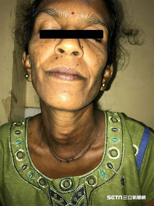 ▲▼一名44歲斐濟婦女甲狀腺結節大如「椰子」,經國泰醫院醫療團協助,手術成功摘除。