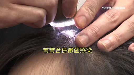 破除迷思! 蛋黃水洗髮恐造成感染