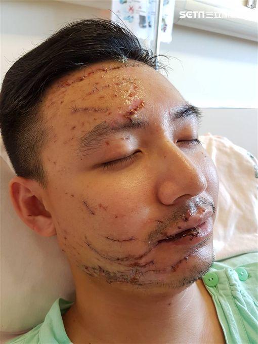 開刀完縫400針靠嗎啡止痛 受傷國道警楊于辰首度露面:我很好。
