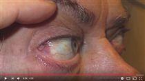 瞼裂斑▲圖/翻攝自YouTube