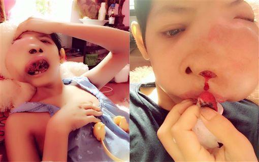 Jennie Yoo,泰國,腫瘤(圖/翻攝自臉書) ID-1025657