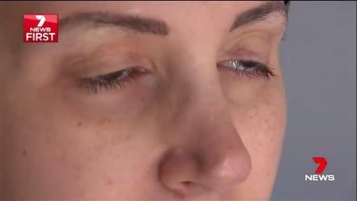 阿德勒,Natalie Adler染怪病,眼睛自動閉合(7news 推特 )