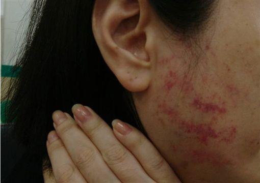 女子雙手及臉頰遭毆打瘀青。(圖/翻攝畫面)
