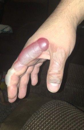 老公救火遭燙傷 卻燙出「陽具」水泡…網笑:右手真的屌