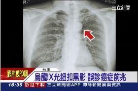 鈕扣誤肺癌1600