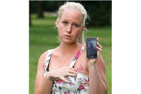 iphone 燙傷(太陽報)