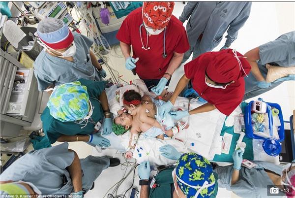 連體嬰/http://www.dailymail.co.uk/news/article-2965426/Conjoined-twin-girls-connected-chest-abdomen-survive-complex-26-hour-operation-separate-world-first.html