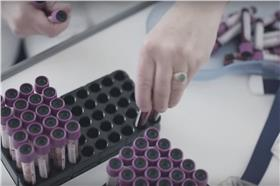 奧地利《Vangardist》雜誌將HIV陽性患者的血液和油墨混合。(圖/翻攝自YouTube)
