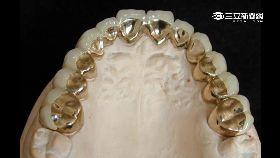 假牙會觸電1800