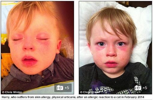 蕁麻疹/每日郵報