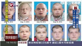 醫學大突破!美國男「全臉移植」成功