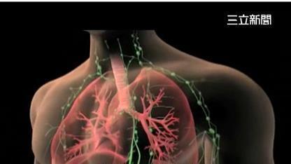 肺癌,癌症 (圖/資料照)