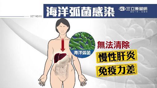 吃個海鮮冷盤 婦人感染海洋弧菌險截肢│三立新聞台