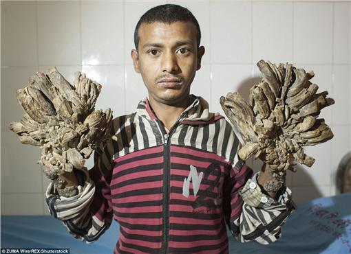 孟加拉男子患有罕見皮膚病,疣狀組織讓他宛如「樹人」翻攝自每日郵報http://www.dailymail.co.uk/news/article-3424150/Bangladeshi-man-suffers-rare-condition-causes-tree-like-roots-grow-hands-feet.html