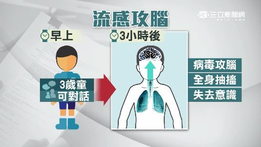 超兇猛流感攻腦 3歲童抽搐急洗血