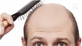 禿頭(圖/翻攝自YouTube)