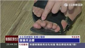 搶救灰指甲 (業配)