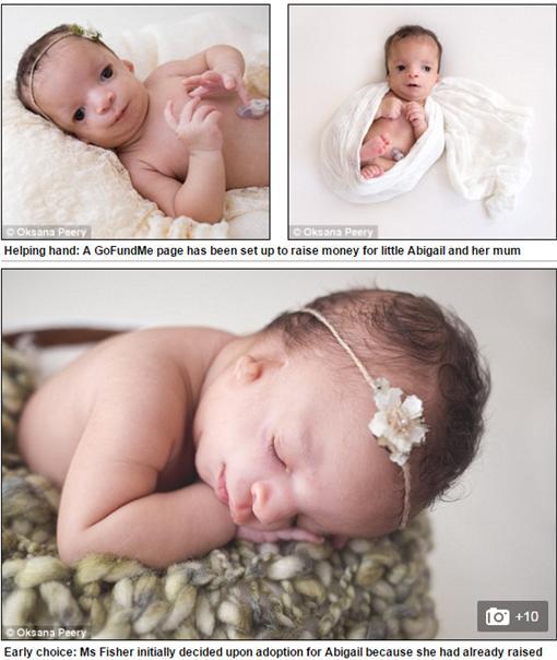 ▲「畸形臉」讓女嬰遭棄養。(圖/翻攝自《每日郵報》)http://www.dailymail.co.uk/femail/article-3626725/Baby-abandoned-adoptive-mum-fled-seeing-born-rare-genetic-condition-kept-birth-mum-instead.html