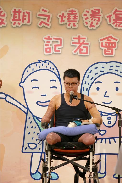 八仙,塵爆,傷患,朱立倫,復健圖/新北市政府提供