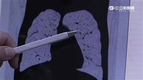 -肺癌-X光片-健檢-