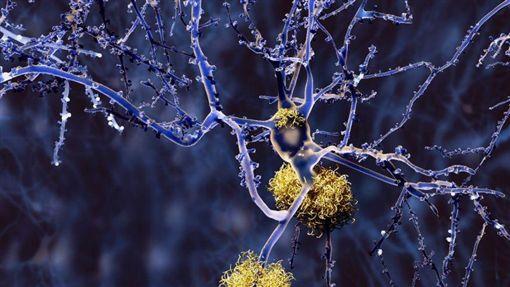 阿茲海默症,http://www.dailymail.co.uk/health/article-3767488/Is-cure-Alzheimer-s-sight-Unprecedented-trial-sees-drug-clear-toxic-proteins-brain.html