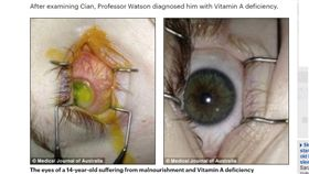 澳洲16歲少年只吃炸雞、薯條 雙眼視力衰退近全盲/每日郵報
