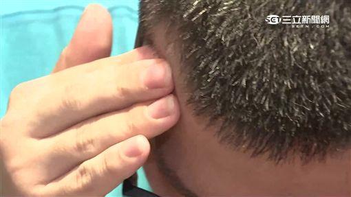-頭痛-頭暈-