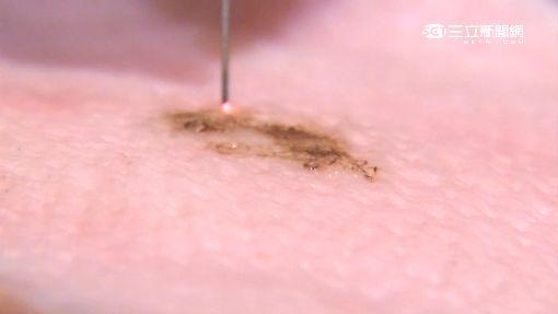 網瘋美容筆「電燒」除痣 醫:恐色素沉澱留疤