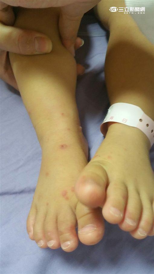 腸病毒疫情升溫!一歲男童反覆發燒無法進食(圖/童綜合醫院)