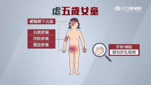 5歲女童遭虐顱內出血 四肢指頭「疑遭針扎」