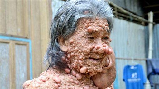 全身長滿腫瘤的60歲男子希蒂(圖/翻攝自每日郵報)