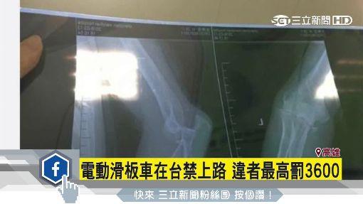 電動滑板車風行 美國上萬人摔傷送醫