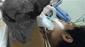 高雄市立小港醫院副院長傅尹志繼創下全球首例鱷魚嘴 下斷肢接合成功紀錄,又為遭火車斷臂命懸一線的顏姓 青少年接回斷臂(圖),喜獲重生。他形容這次手術是 浴血奮戰。 (小港醫院提供) 中央社記者程啟峰高雄傳真  105年11月27日