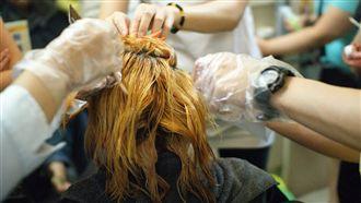 女髮全白滿肩頭皮屑 竟是染髮惹的禍