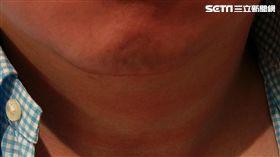 一位50歲男性臉經常紅紅的,常被誤以為是喝酒引起,經健檢發現竟是罹患「真性紅血球增生症」。(圖/書田診所提供)