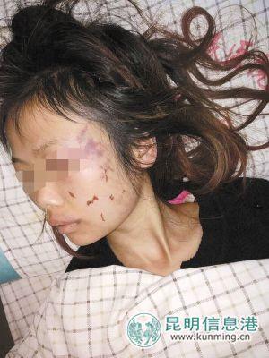 中國大陸雲南宣威市女子遭圍毆(圖/翻攝自昆明信息港)
