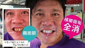 潔牙粉傷牙1800