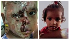 印度,新德里,幼童,毀容(圖/翻攝自Mirror)
