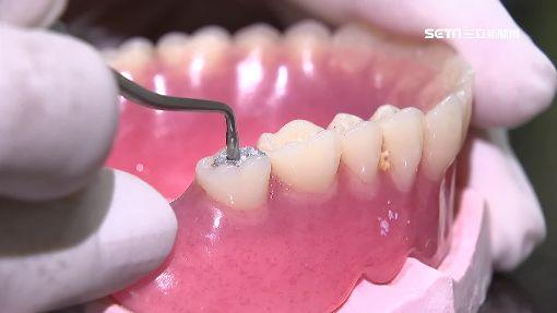補牙大學問!銀粉置密度高 樹脂貴2成