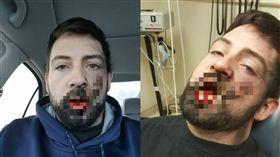 電子菸口中爆炸,男子被炸碎7顆牙齒。(圖/翻攝自Andrew Hall臉書)
