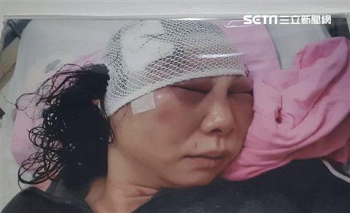 民進黨台北市議員童仲彥對妻子李秀環施暴、家暴、暴力、毆打(圖/李秀環提供)